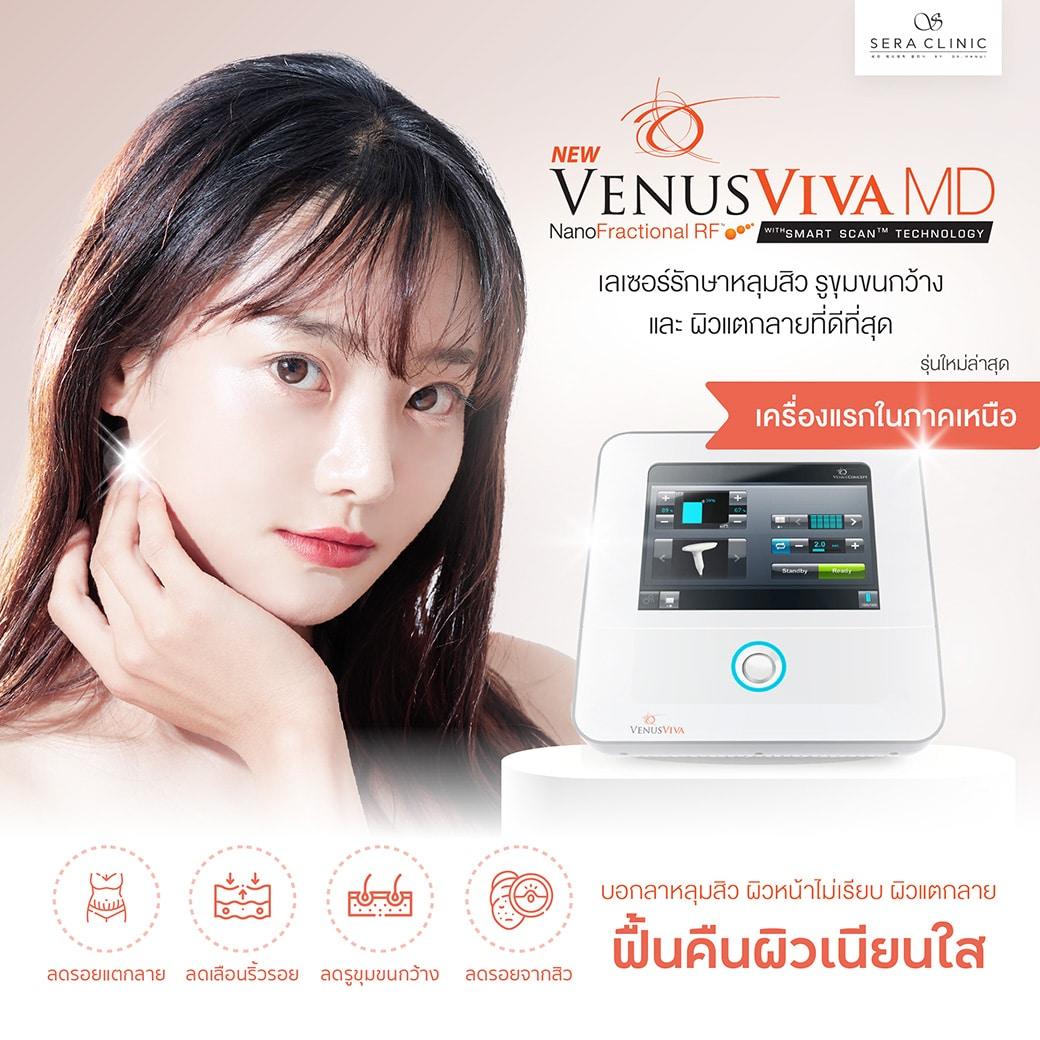 Sera Clinic Venus Viva Laser for Ance, Scar, Stretch Makr Treatment