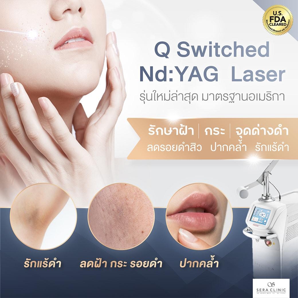 Q Switched Nd YAG laser Sera clinic