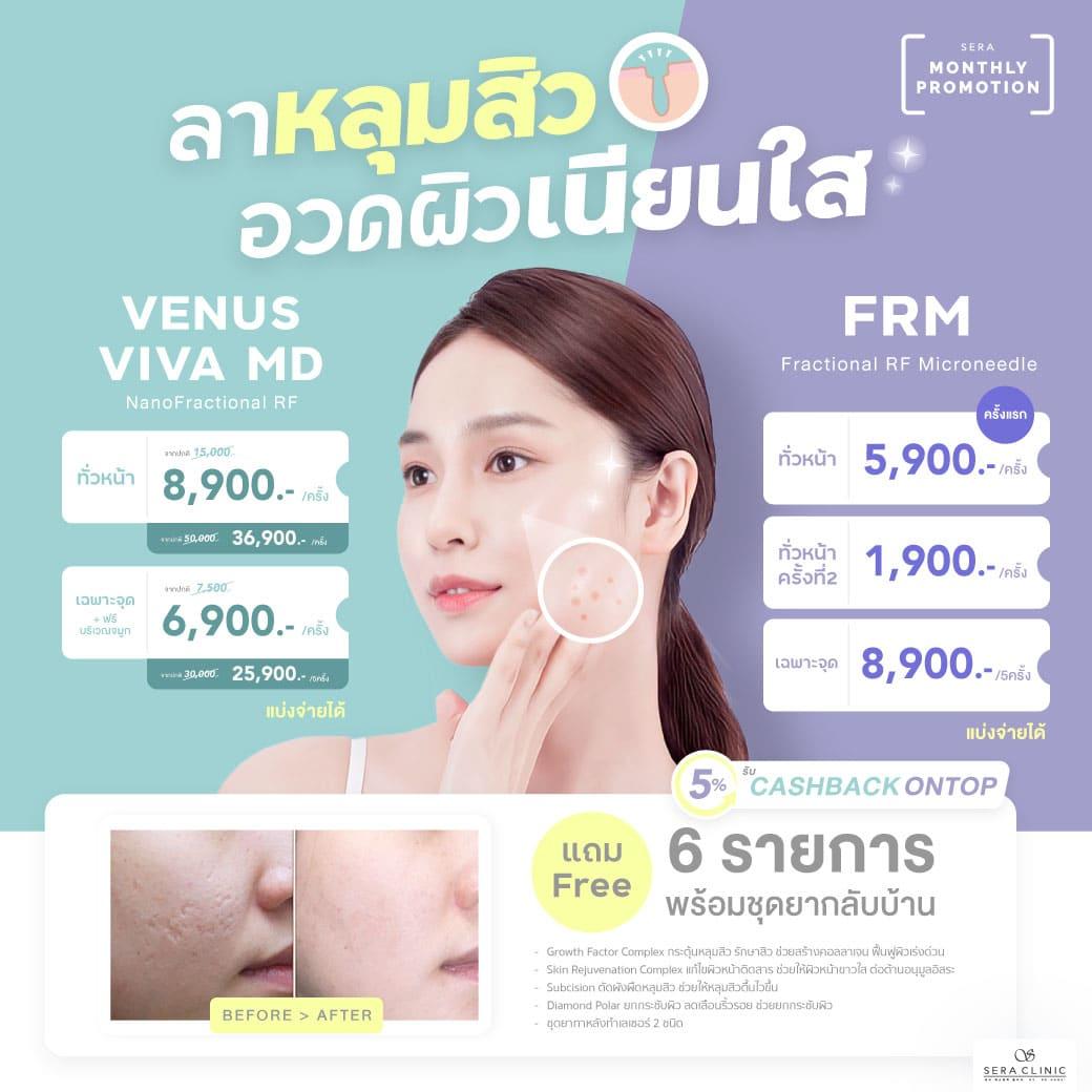 Promotion_August_UDKKSKN_FRM & Venus Viva MD